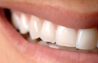 Günstige und beste Zahnbleaching in der Türkei