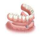 Beste Zahnprothese in der Türkei- Istanbul