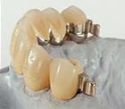 Günstige Zahnprothese in der Türkei